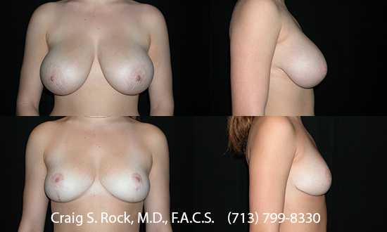 Breast Augmentation Using Silicone Implants - Patient 1